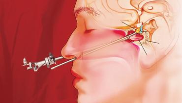 Chirurgia tumorilor hipofizare