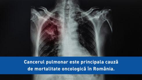 Cancerul pulmonar este principala cauză de mortalitate oncologică în România. Dr. Adelina Dan