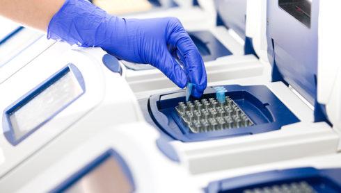 Noi concluzii în studiul de secventiere pentru virusul SARS CoV2, MedLife
